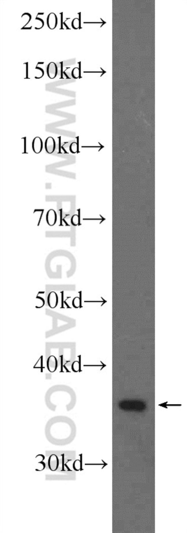 RNF41 Rabbit anti-Human, Mouse, Rat, Polyclonal, Proteintech 20 μL; Unconjugated Produkte