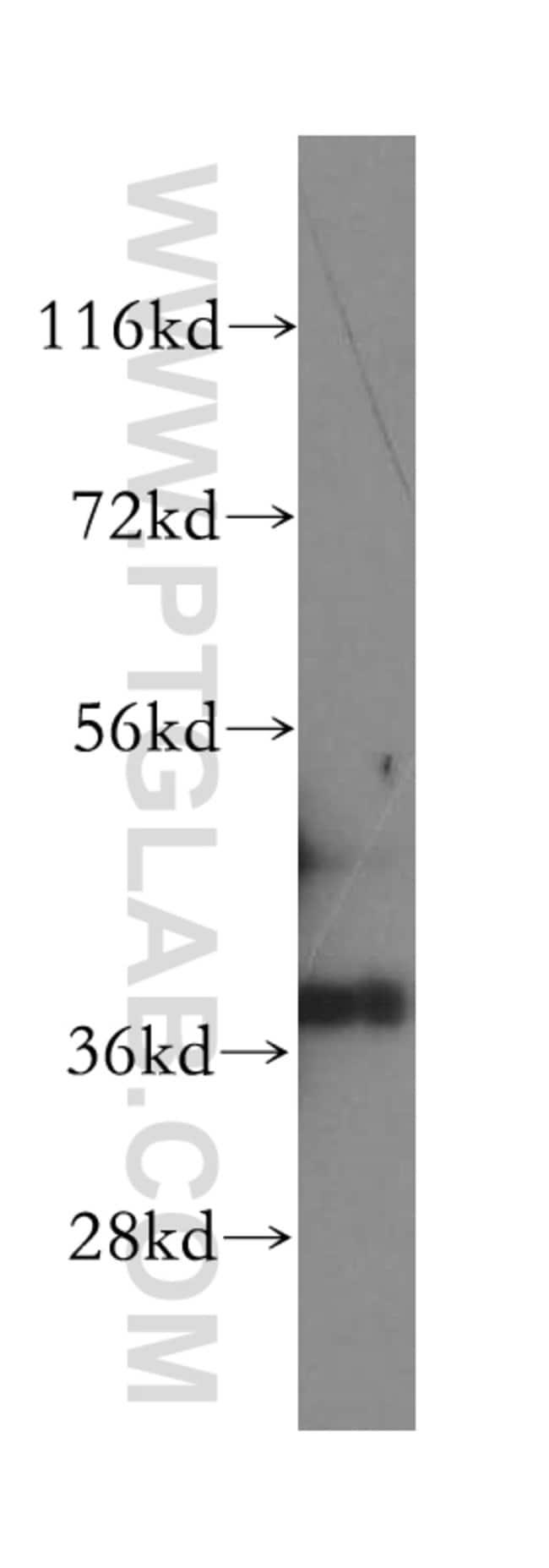 GPD1L Rabbit anti-Human, Mouse, Rat, Polyclonal, Proteintech 20 μL; Unconjugated Produkte
