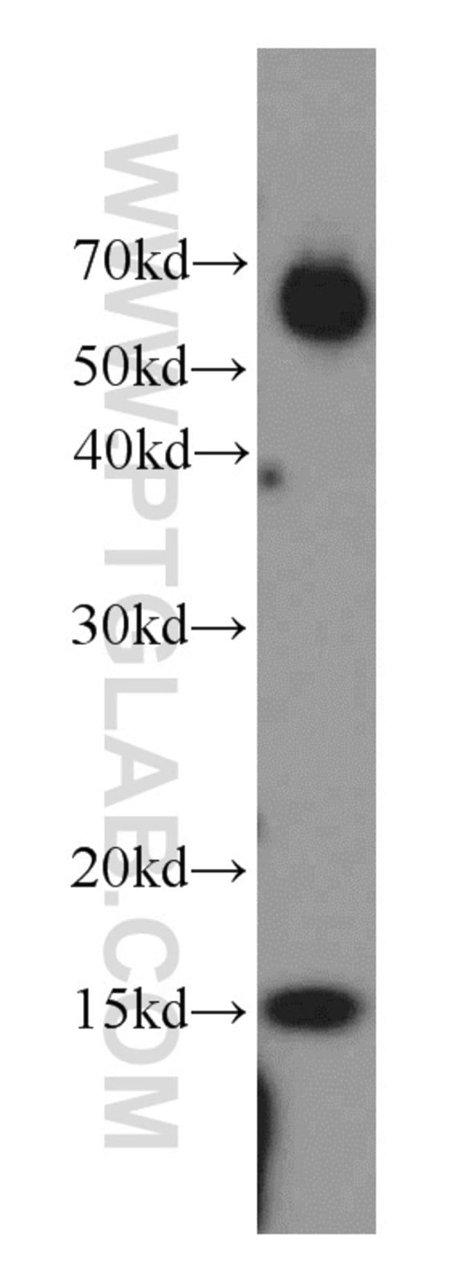 POLR2I Rabbit anti-Human, Mouse, Rat, Polyclonal, Proteintech 20 μL; Unconjugated Produkte