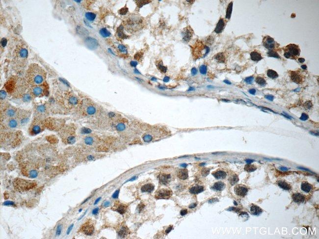 SNAPC5 Rabbit anti-Human, Polyclonal, Proteintech 150 μL; Unconjugated Ver productos