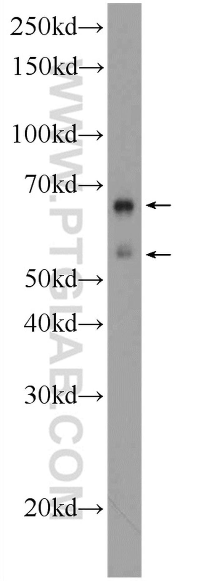 EXD1 Rabbit anti-Human, Mouse, Rat, Polyclonal, Proteintech 150 μL; Unconjugated Ver productos