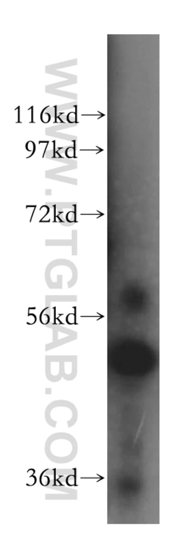 ALDH5A1 Rabbit anti-Human, Mouse, Rat, Polyclonal, Proteintech 20 μL; Unconjugated Produkte