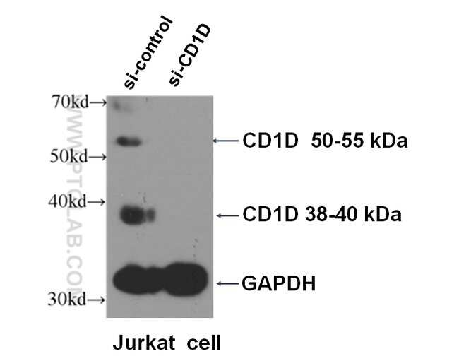 CD1d Rabbit anti-Human, Mouse, Polyclonal, Proteintech 150 μL; Unconjugated Ver productos