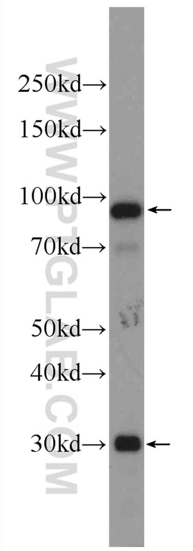 C1R Rabbit anti-Human, Polyclonal, Proteintech 150 μL; Unconjugated Ver productos