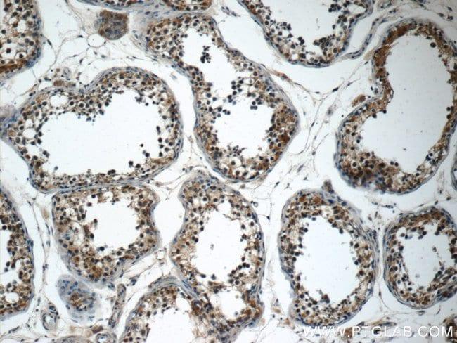 SPATA16 Rabbit anti-Human, Mouse, Rat, Polyclonal, Proteintech 20 μL; Unconjugated Produkte