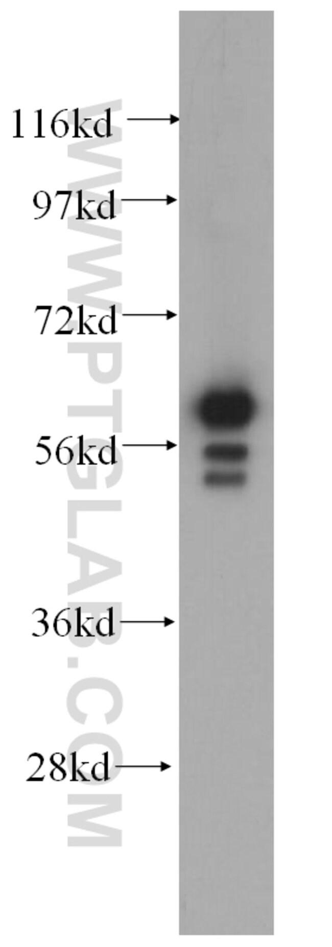 Cytokeratin 6B Rabbit anti-Human, Mouse, Polyclonal, Proteintech 150 μL; Unconjugated Ver productos