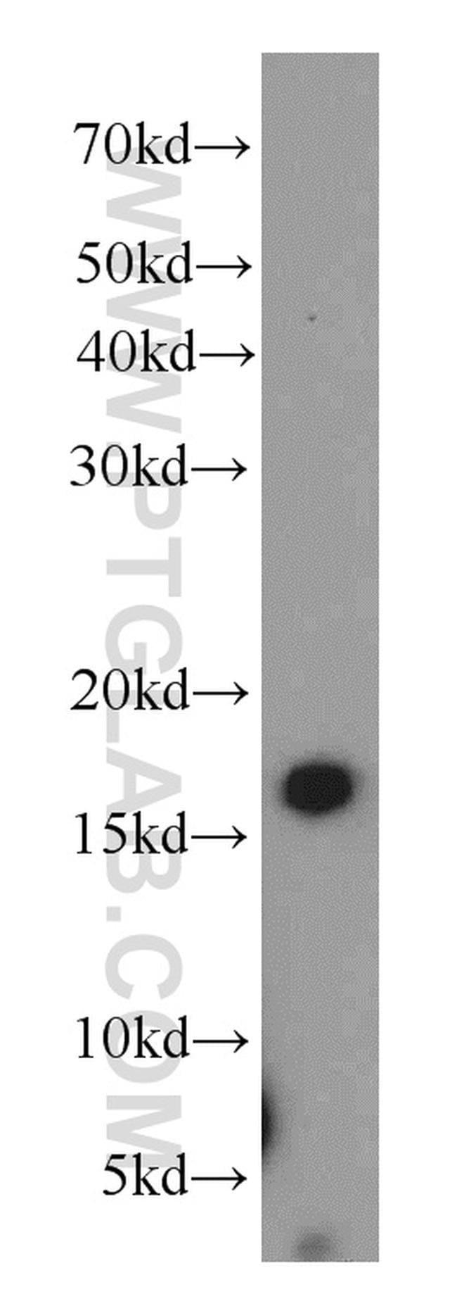 ZG16 Rabbit anti-Human, Mouse, Rat, Polyclonal, Proteintech 150 μL; Unconjugated Ver productos