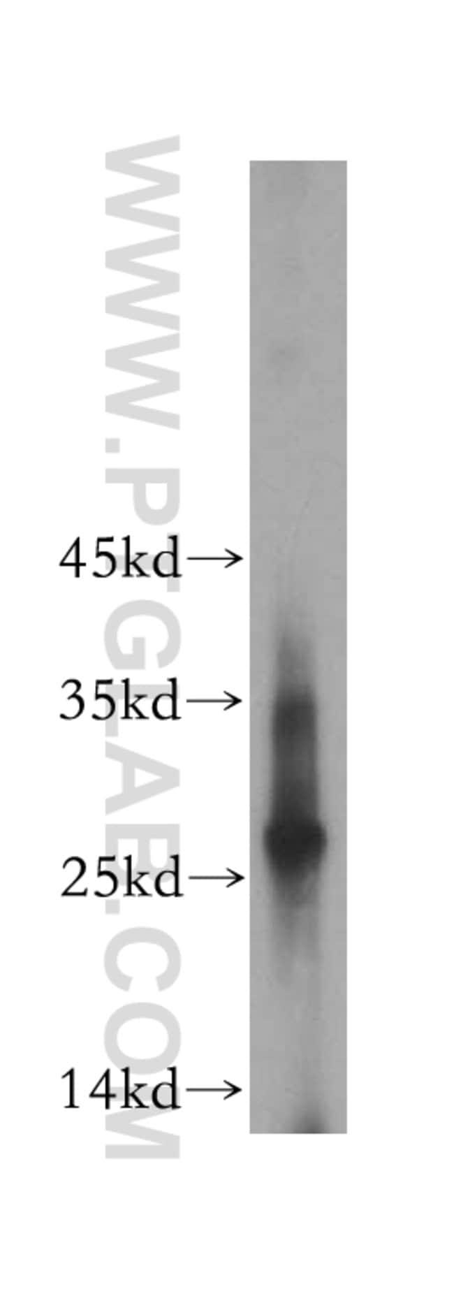 EVI2A Rabbit anti-Human, Polyclonal, Proteintech 20 μL; Unconjugated Produkte
