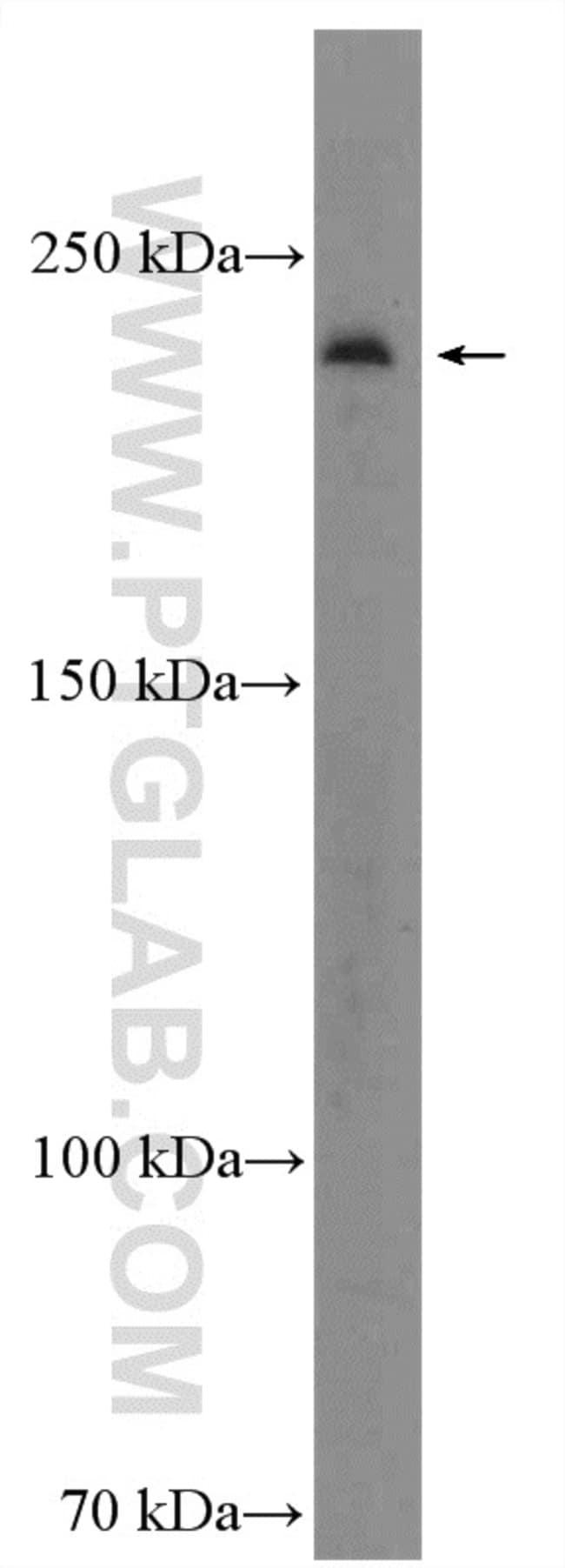 KIF26B Rabbit anti-Human, Mouse, Rat, Polyclonal, Proteintech 20 μL; Unconjugated Produkte
