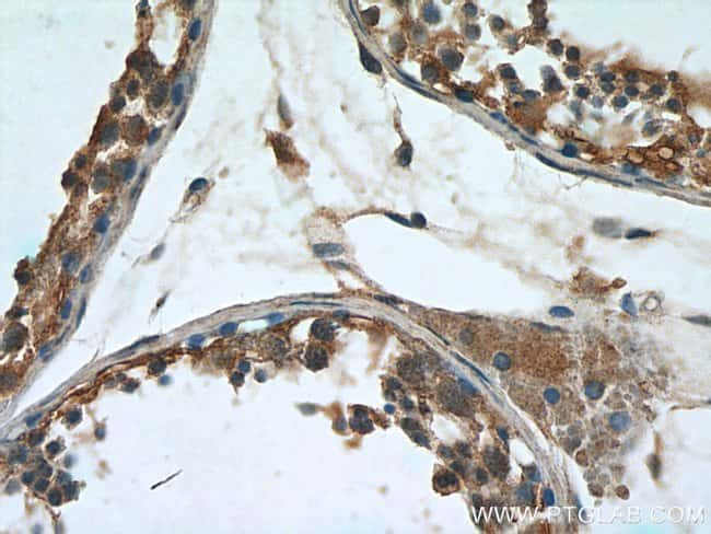 Leptin Rabbit anti-Human, Mouse, Polyclonal, Proteintech 150 μL; Unconjugated Produkte