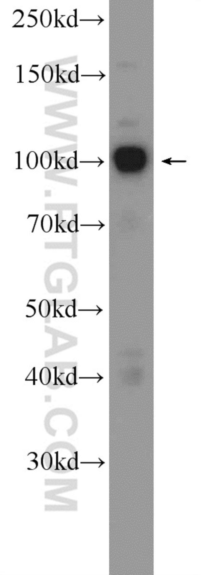 CTAGE6 Rabbit anti-Human, Polyclonal, Proteintech 20 μL; Unconjugated Ver productos