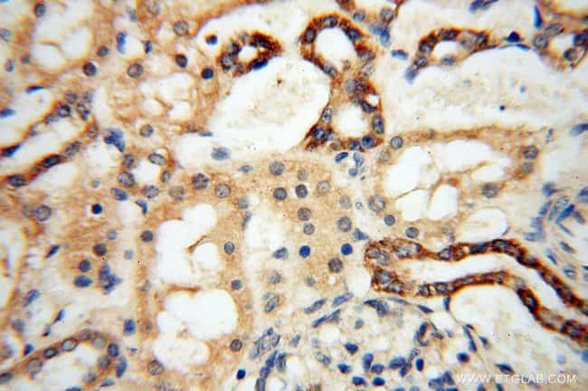 YTHDF1 Rabbit anti-Human, Mouse, Rat, Polyclonal, Proteintech 20 μL; Unconjugated Ver productos