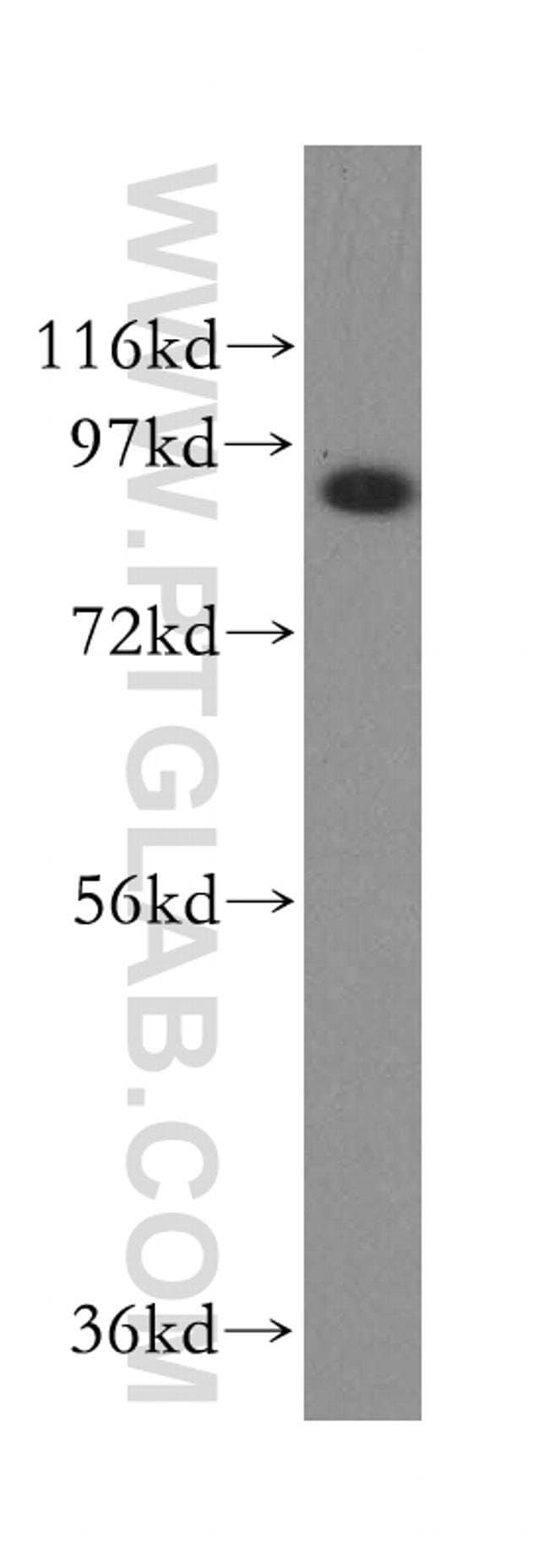 Filensin Rabbit anti-Human, Polyclonal, Proteintech 150 μL; Unconjugated Produkte