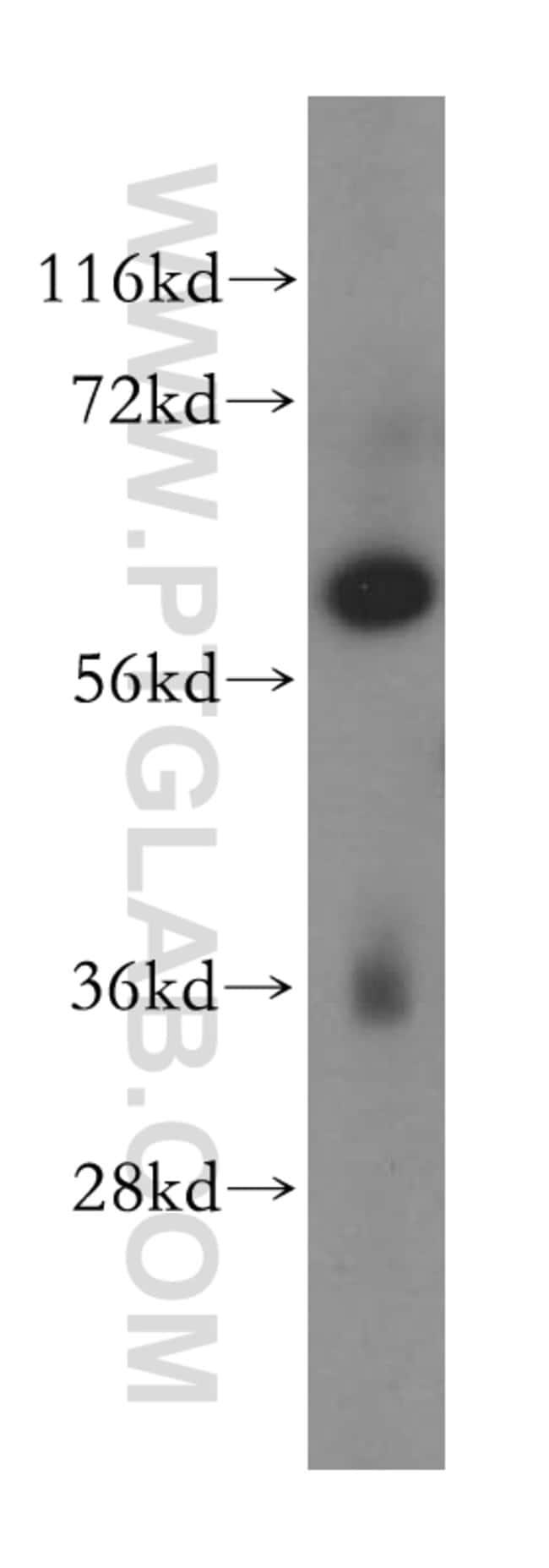 MAGEB18 Rabbit anti-Human, Polyclonal, Proteintech 20 μL; Unconjugated Ver productos