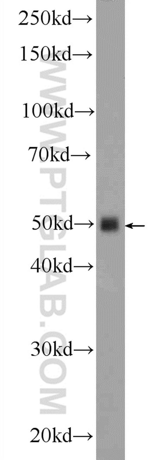 Inhibin beta A Rabbit anti-Human, Mouse, Rat, Polyclonal, Proteintech 20 μL; Unconjugated Ver productos