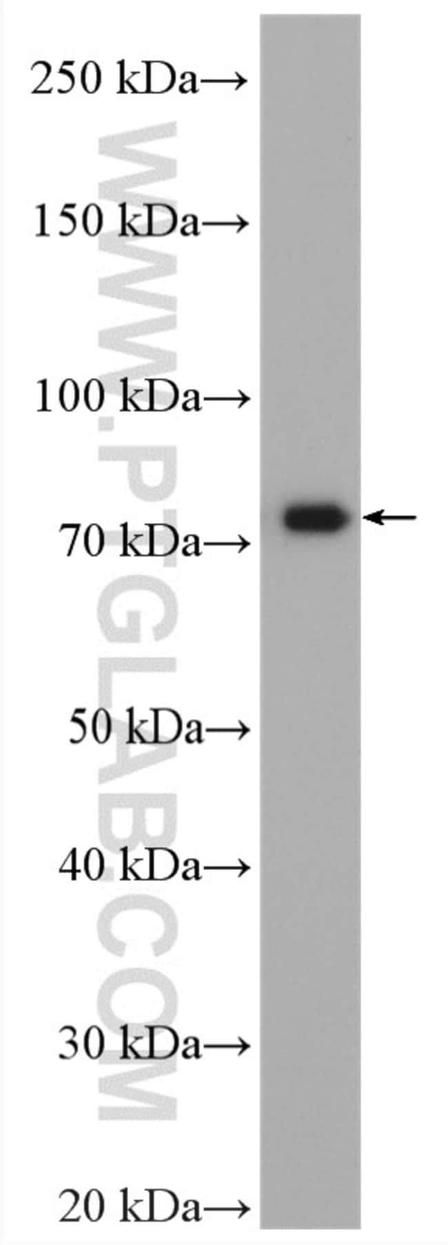 MTMR12 Rabbit anti-Human, Mouse, Rat, Polyclonal, Proteintech 20 μL; Unconjugated Ver productos