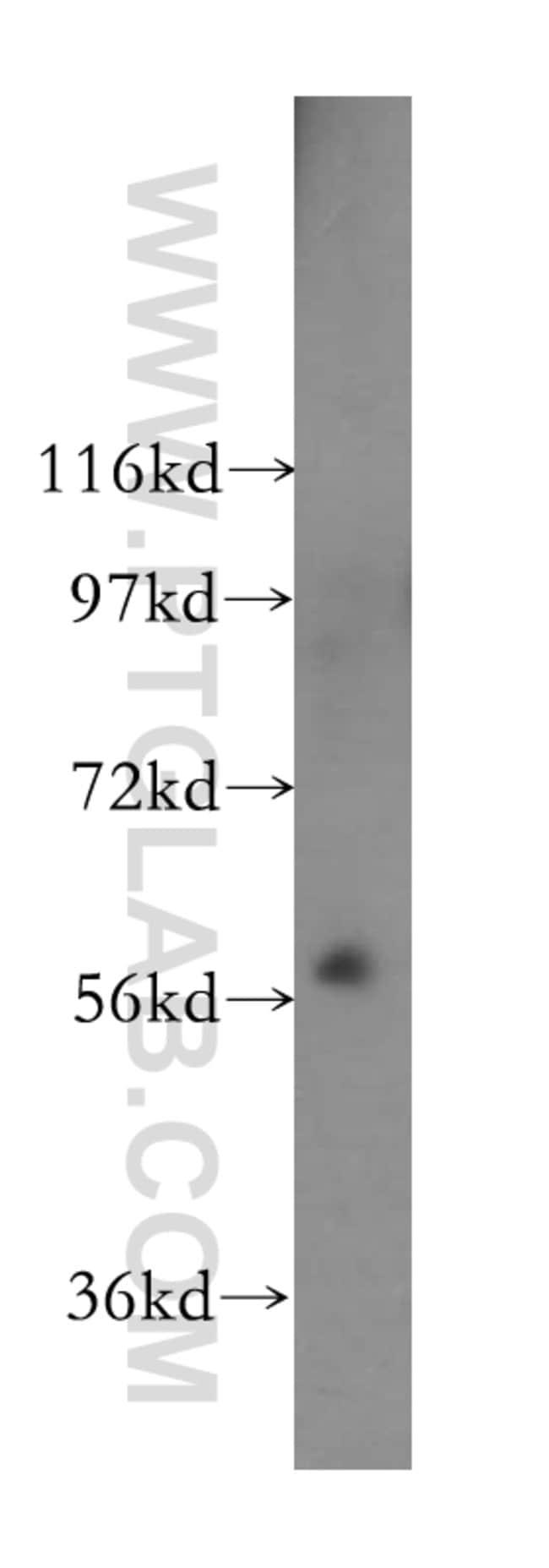 PKLR Rabbit anti-Human, Mouse, Rat, Polyclonal, Proteintech 150 μL; Unconjugated Produkte