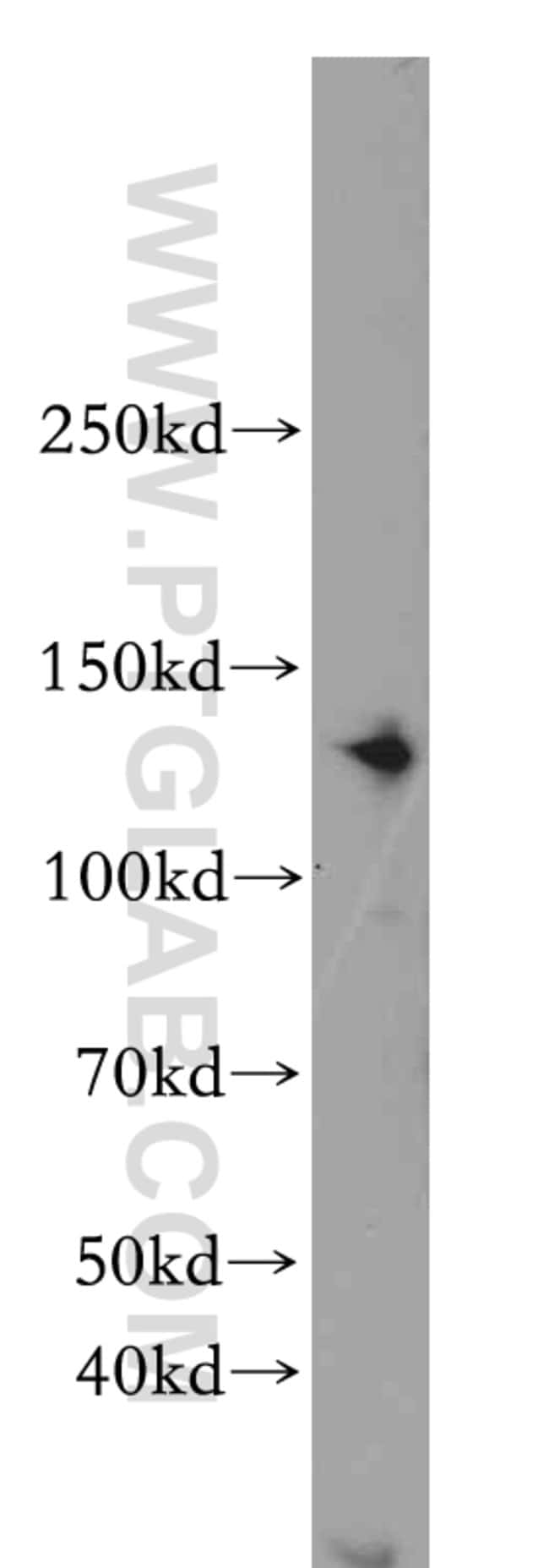 CDAN1 Rabbit anti-Human, Mouse, Polyclonal, Proteintech 20 μL; Unconjugated Ver productos