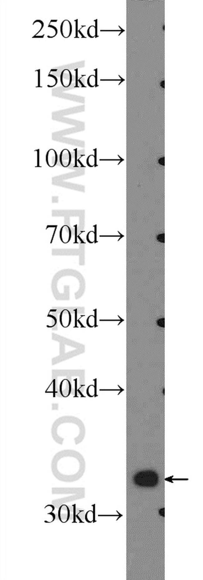 MIOX Rabbit anti-Human, Mouse, Rat, Polyclonal, Proteintech 20 μL; Unconjugated Ver productos