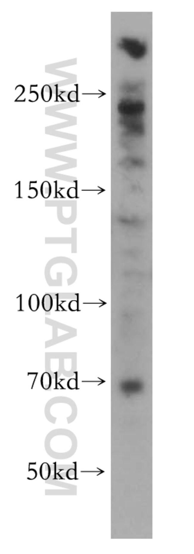 PGBD3 Rabbit anti-Human, Mouse, Rat, Polyclonal, Proteintech 150 μL; Unconjugated Produkte