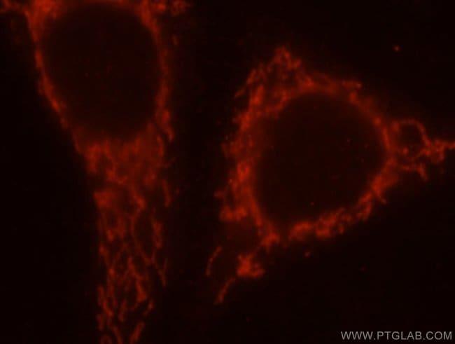 SAMD4B Rabbit anti-Human, Mouse, Rat, Polyclonal, Proteintech 20 μL; Unconjugated Ver productos