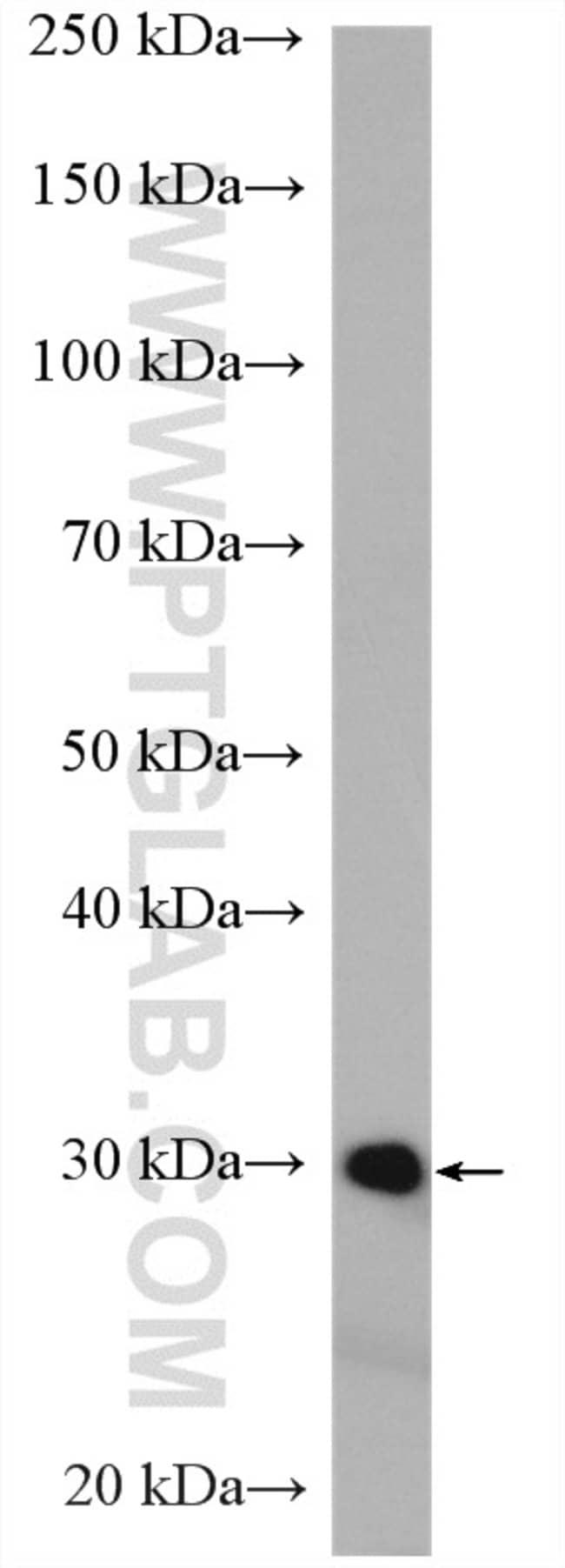 DCK Rabbit anti-Human, Mouse, Rat, Polyclonal, Proteintech 20 μL; Unconjugated Ver productos