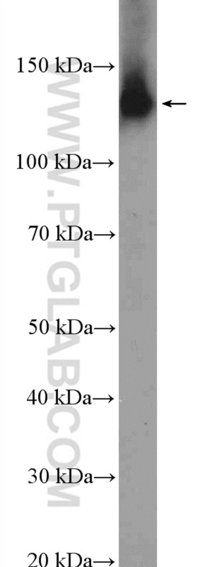 NOMO1 Rabbit anti-Human, Mouse, Rat, Polyclonal, Proteintech 20 μL; Unconjugated Ver productos