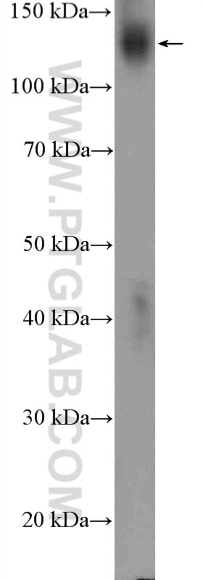 PTK7 Rabbit anti-Human, Mouse, Rat, Polyclonal, Proteintech 20 μL; Unconjugated Ver productos