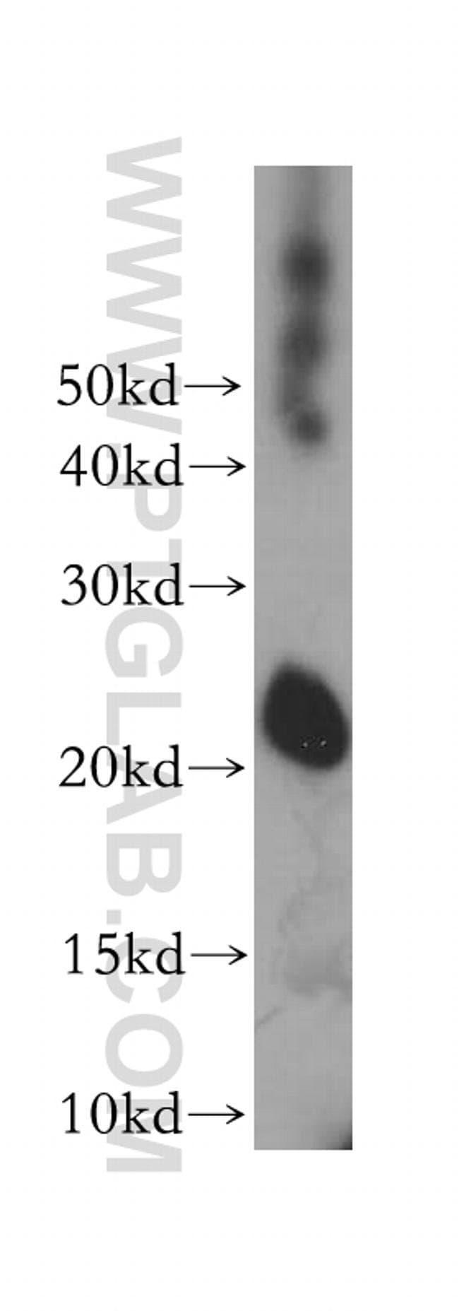 TC10 Rabbit anti-Human, Polyclonal, Proteintech 20 μL; Unconjugated Ver productos