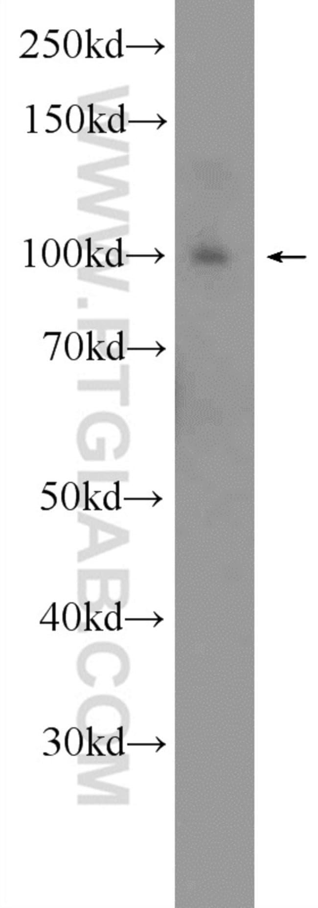SNCAIP Rabbit anti-Human, Mouse, Polyclonal, Proteintech 20 μL; Unconjugated Ver productos