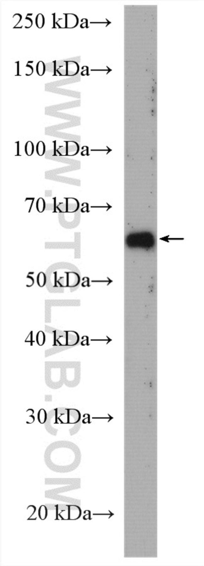 USP21 Rabbit anti-Human, Polyclonal, Proteintech 20 μL; Unconjugated Ver productos