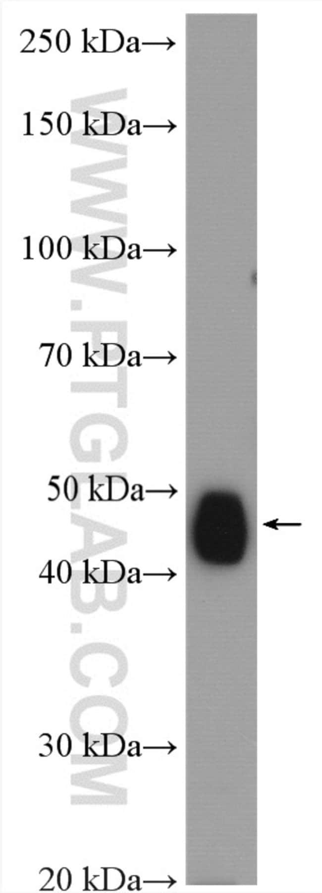 CYP2D6 Rabbit anti-Human, Mouse, Rat, Polyclonal, Proteintech 20 μL; Unconjugated Ver productos