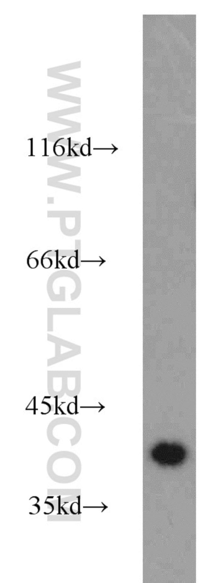 NECAP1 Rabbit anti-Human, Mouse, Rat, Polyclonal, Proteintech 20 μL; Unconjugated Ver productos