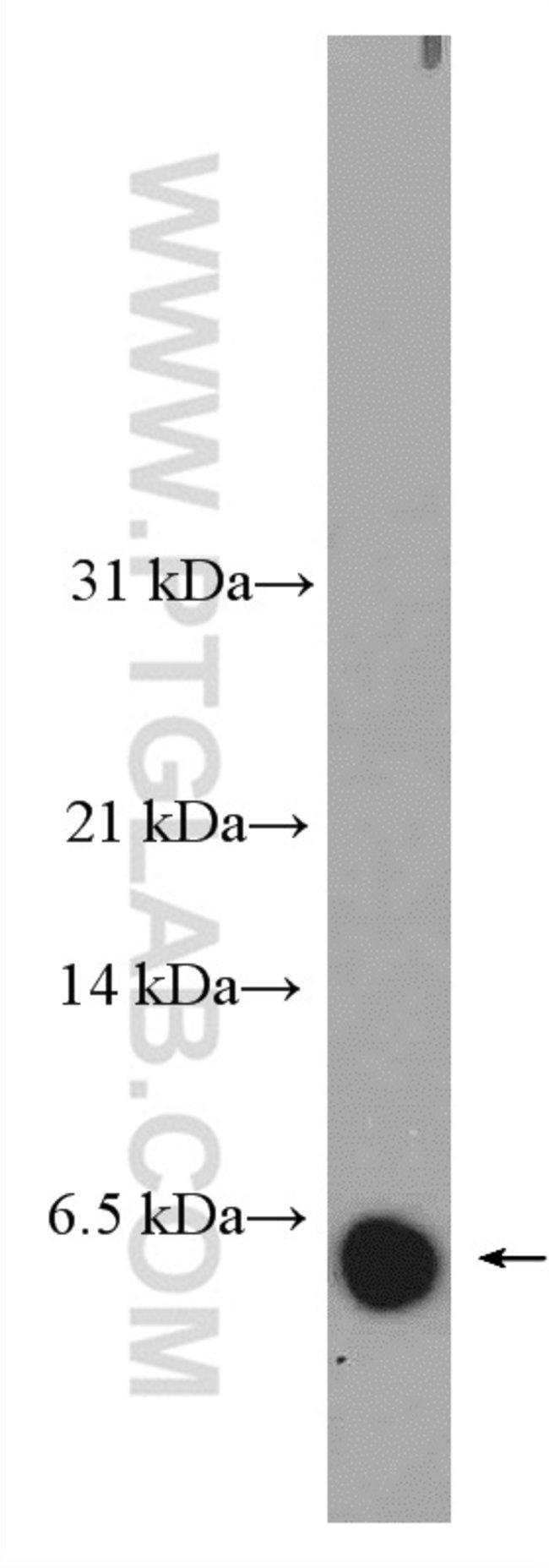 DEFA6 Rabbit anti-Human, Polyclonal, Proteintech 20 μL; Unconjugated Ver productos