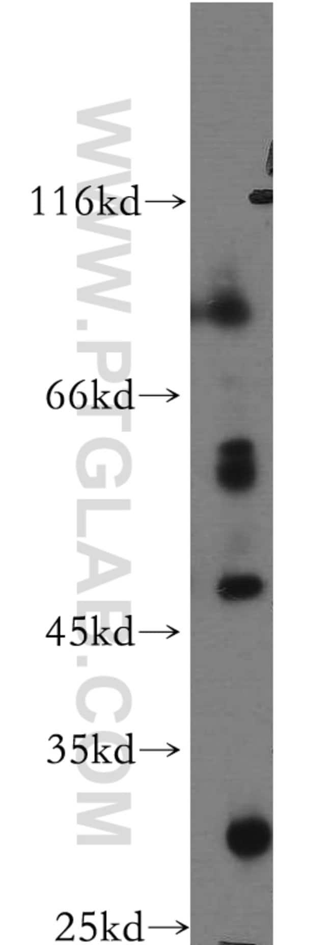 PTPRR Rabbit anti-Human, Mouse, Rat, Polyclonal, Proteintech 20 μL; Unconjugated Ver productos