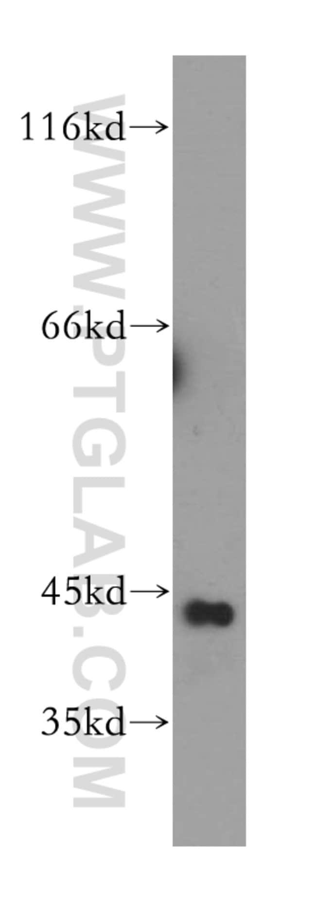 GTF2H2C Rabbit anti-Human, Mouse, Rat, Polyclonal, Proteintech 20 μL; Unconjugated Ver productos