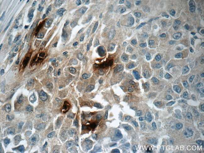 DEFA1 Rabbit anti-Human, Polyclonal, Proteintech 20 μL; Unconjugated Ver productos