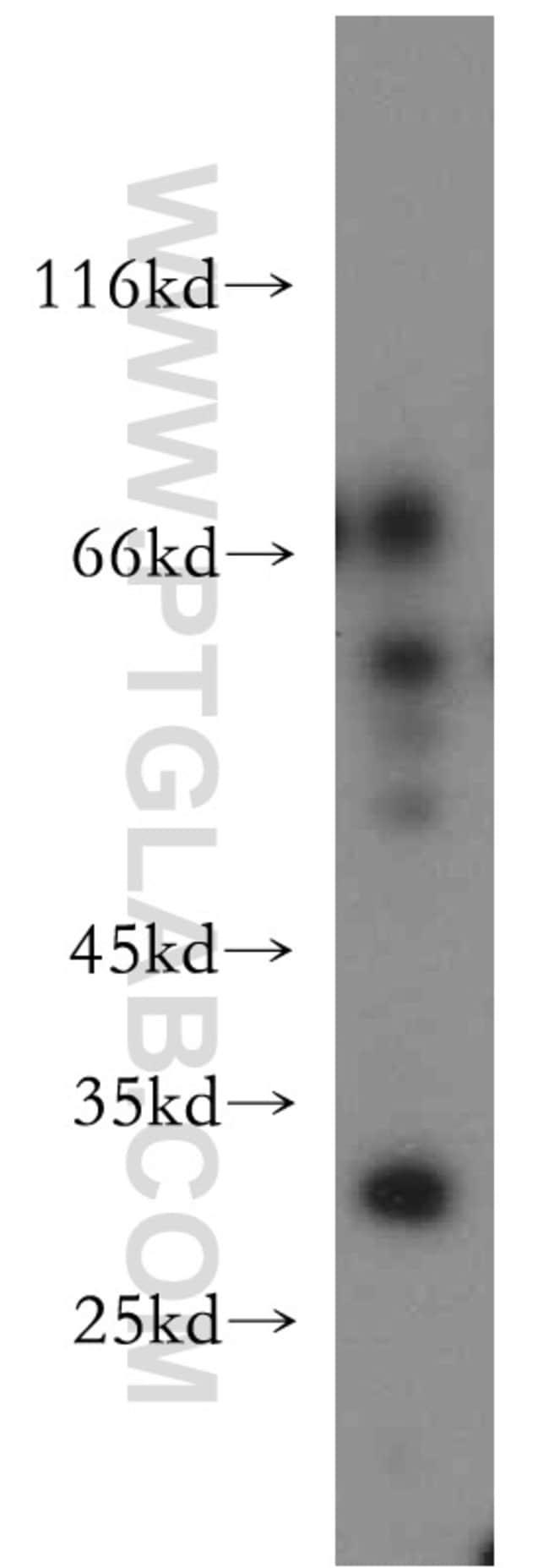 COX18 Rabbit anti-Human, Mouse, Polyclonal, Proteintech 20 μL; Unconjugated Ver productos