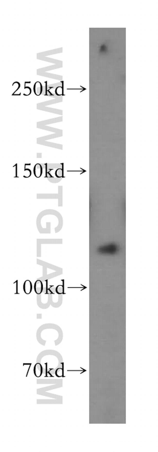 PMS2 Rabbit anti-Human, Mouse, Rat, Polyclonal, Proteintech 20 μL; Unconjugated Ver productos