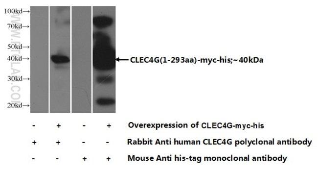 CLEC4G Rabbit anti-Human, Polyclonal, Proteintech 20 μL; Unconjugated Ver productos
