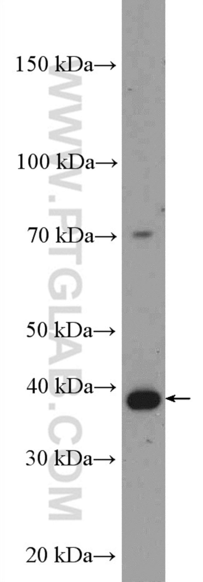 IkB alpha Rabbit anti-Human, Polyclonal, Proteintech 20 μL; Unconjugated Ver productos