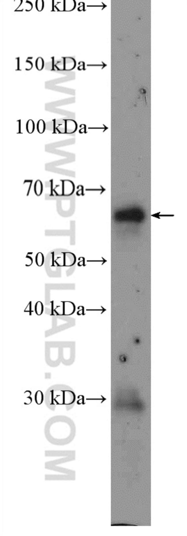 EIF2AK2/PKR Rabbit anti-Human, Mouse, Rat, Polyclonal, Proteintech 20 μL; Unconjugated Ver productos