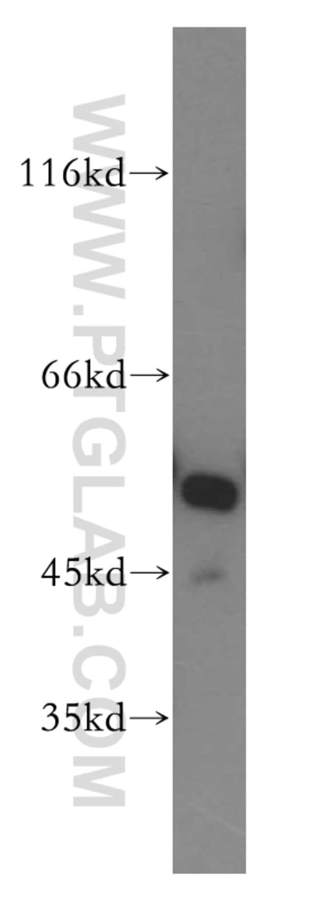 GSR Rabbit anti-Human, Mouse, Rat, Polyclonal, Proteintech 20 μL; Unconjugated Ver productos
