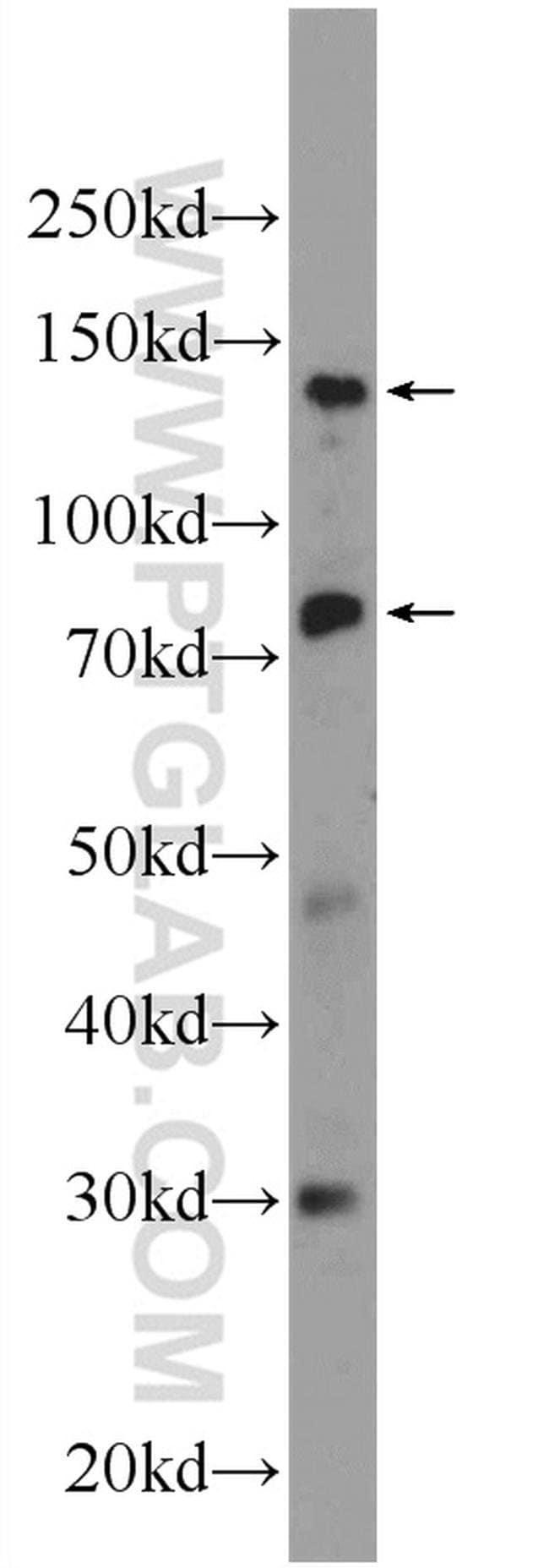 Pinin Rabbit anti-Human, Polyclonal, Proteintech 20 μL; Unconjugated Ver productos