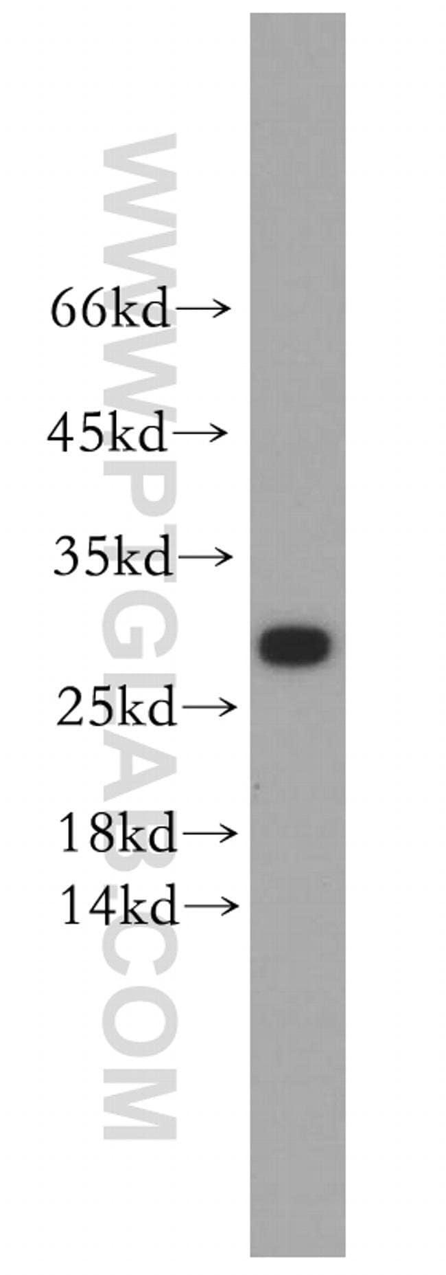 KCNE4 Rabbit anti-Human, Mouse, Rat, Polyclonal, Proteintech 20 μL; Unconjugated Ver productos