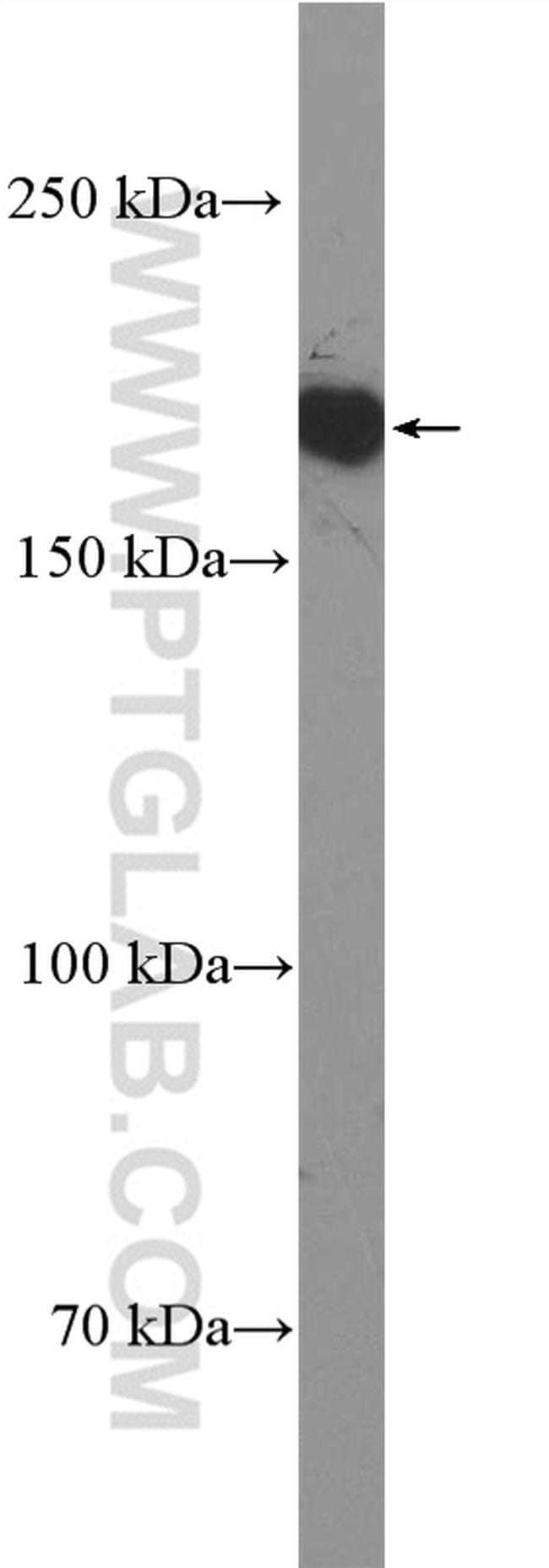 Thrombospondin 1 Rabbit anti-Human, Mouse, Rat, Polyclonal, Proteintech 20 μL; Unconjugated Ver productos