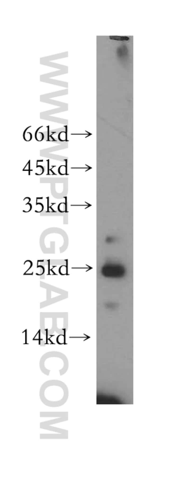 MRPS23 Rabbit anti-Human, Mouse, Rat, Polyclonal, Proteintech 20 μL; Unconjugated Ver productos