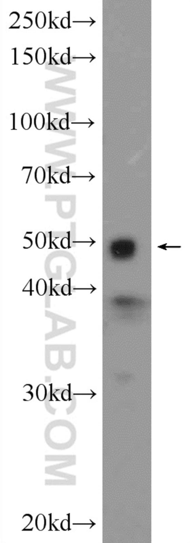 IKBKG Rabbit anti-Human, Mouse, Rat, Polyclonal, Proteintech 20 μL; Unconjugated Ver productos