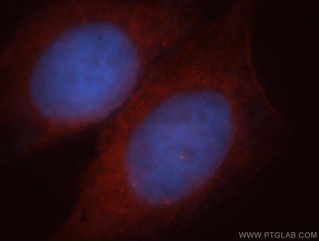 PPP1R9A Rabbit anti-Human, Mouse, Rat, Polyclonal, Proteintech 20 μL; Unconjugated Ver productos