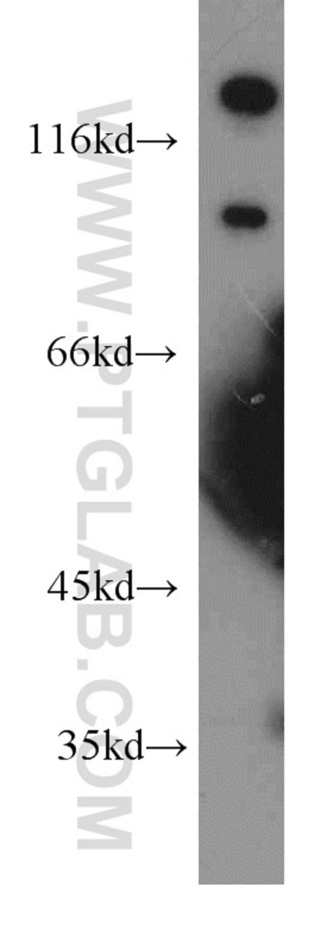 OTOP3 Rabbit anti-Human, Mouse, Polyclonal, Proteintech 20 μL; Unconjugated Ver productos
